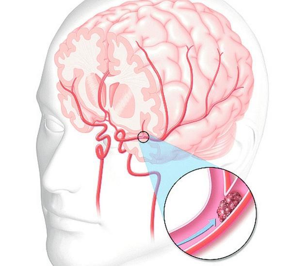 Acidente Vascular Cerebral Isquêmico