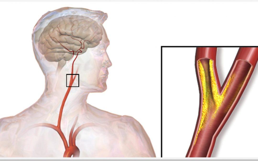 Obstrução das Artérias Carótidas