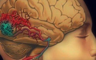 Malformação Arteriovenosa